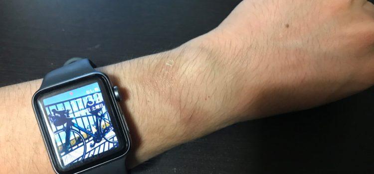 Apple Watchを毎日着けていて肌荒れ・肌焼けしてしまった場合の対処について